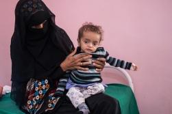 Severe acute malnutrition patient. Public Sadaka Hospital. Aden, Yemen. January 2018